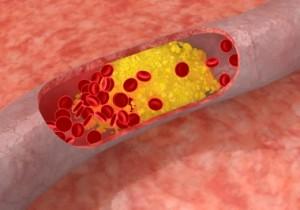 Cholesterolio koncentracija | cholesterolis.com nuotr.