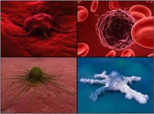 "Vėžinės ląstelės, ""World Cancer Day"" nuotr."