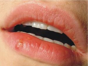 Lūpų pūslelinė | Moterims.net nuotr.