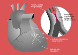 Miokardo infarktas | Wikipedia.org nuotr.