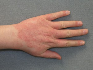 Kontaktinis dermatitas | britishskinfoundation.org.uk nuotr.