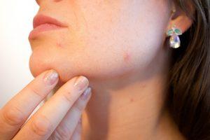 Priešmenstruacinis sindromas: veido odos būklę lemia estrogeno pokyčiai | Pixabay nuotr.