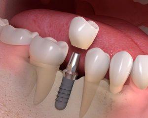 Dantu implantai | expertmedia.lt nuotr.