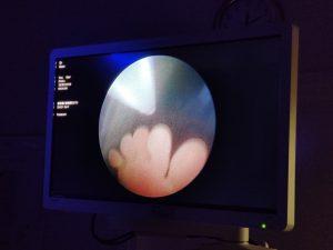 Fetoskopijos vaizdai, matosi vaisiaus pėdos pirštai | VUL Santaros klinikos (PS) nuotr.