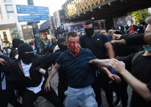 Londone jau kilo pirmieji dviejų protestuojančių grupių susidūrimai ir panašu, jog jų tik daugės | EPA-Eltos nuotr.
