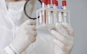 Koronavirusas, tyrimai | sam.lt nuotr.