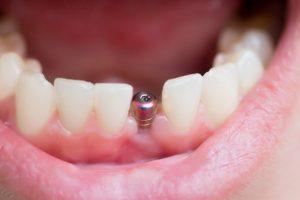 Dantų implantavimas | rengėjų nuotr.